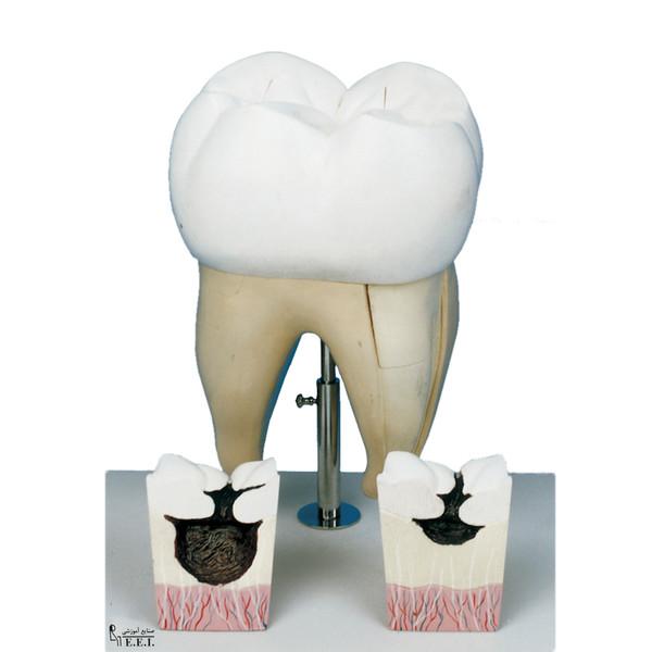 بازی آموزشی صنایع آموزشی طرح مولاژ دندان آسیاب کد 20090