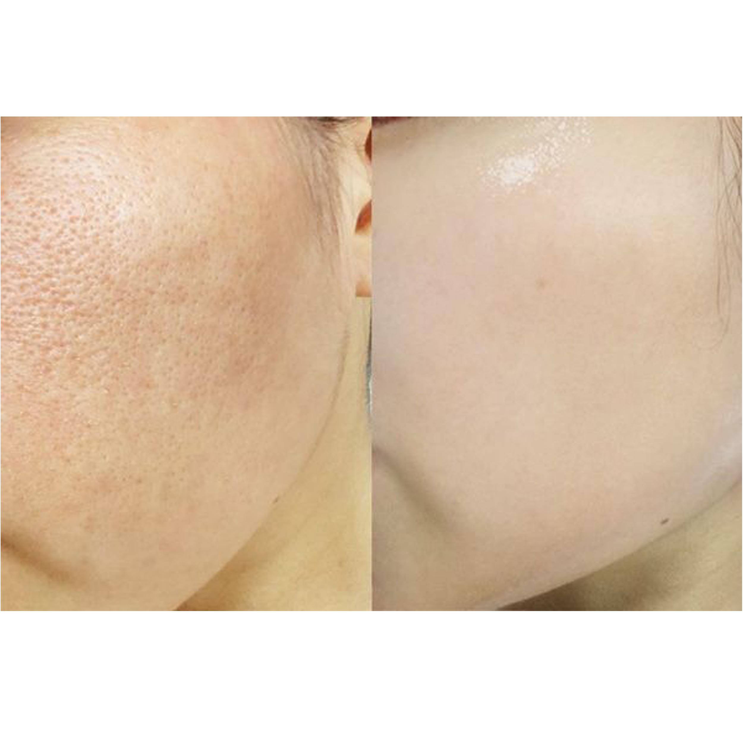 ماسک و اسکراب صورت بایو آکوا مدل  Bright Skin حجم 120 میلی لیتر main 1 7